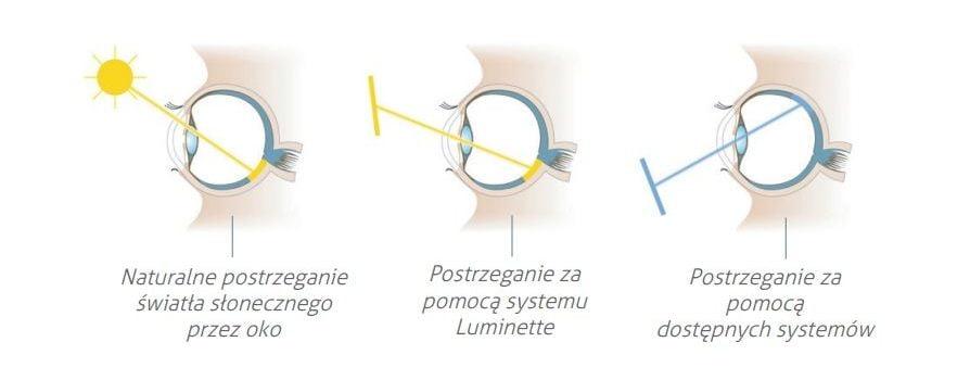 Okulary Luminette - działanie